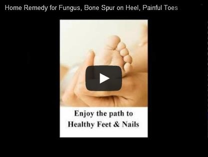 Home Remedy for Fungus, Bone Spur on Heel, Painful Toes & Feet